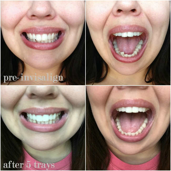 Invisalign Update...Halfway There!