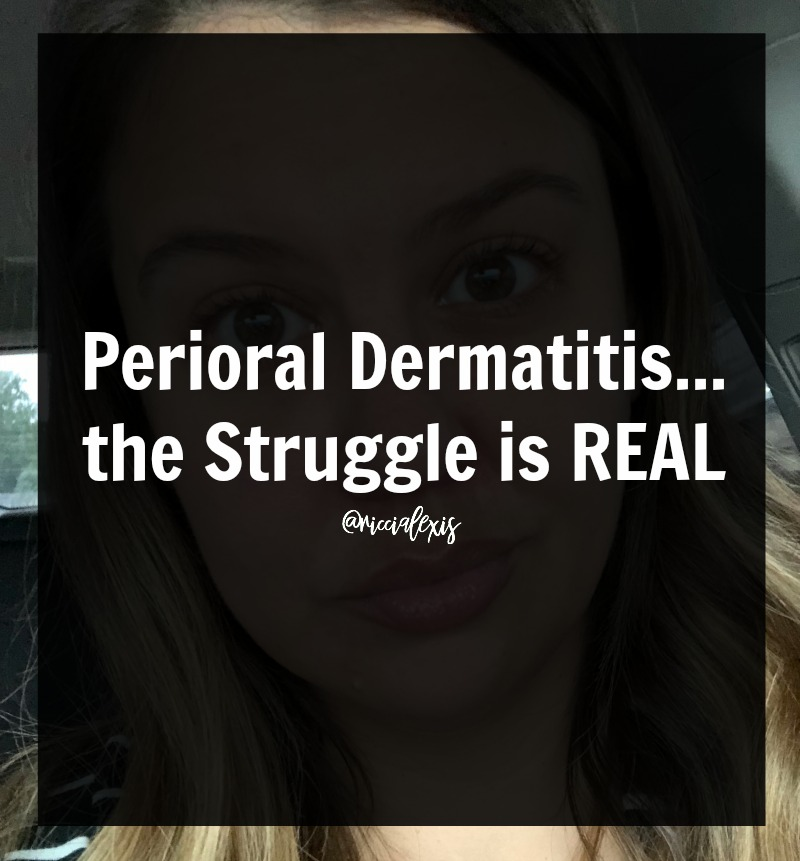 Perioral Dermatitis   the Struggle is REAL!